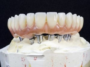 dentures made at a dental lab in Texas